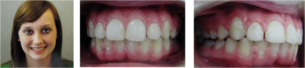 Elaina 5 - Finish 9-15-2010 - Removal of braces!