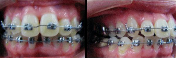 Linda 3 - Surgical photos 12-8-2009 – After