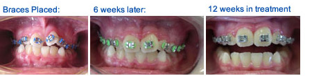 Early Braces - Braces Placed