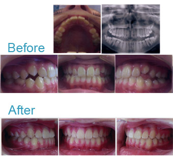 Braces & Expansions - Before and After