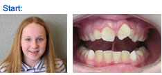 Early braces only on upperteeth