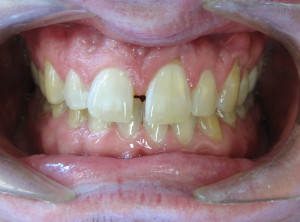 Large space between front teeth